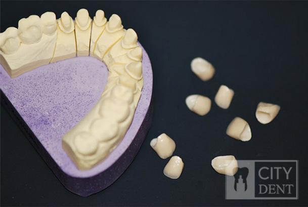 Korony ceramiczne i model roboczy