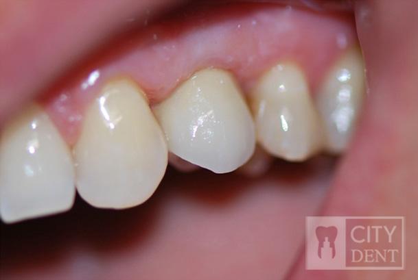 Stan po zacementowaniu korony porcelanowej na implancie w miejsce brakującego zęba czwartego w szczęce górnej.