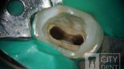 leczenie kanałowe - oczyszczony ząb