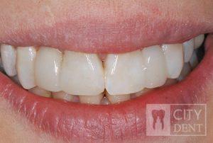Uzupełnienie zębów brakujących dwójek górnych przy pomocy mostów adhezyjnych stan po leczeniu