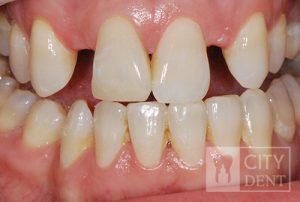 Uzupełnienie zębów brakujących dwójek górnych przy pomocy mostów adhezyjnych stan przed leczeniem