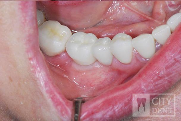 Zacementowana korona na implancie w pozycji zęba szóstego dolnego z dowieszeniem zęba piątego