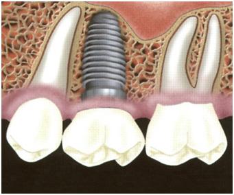 Implant zęba rysunek poglądowy