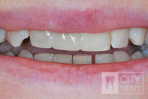 Uzupełnienie zęba brakującej jedynki górnej prawej mostem adhezyjnym. stan po leczeniu