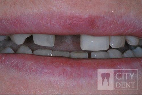 Uzupełnienie zęba brakującej jedynki górnej prawej mostem adhezyjnym. stan przed leczeniem
