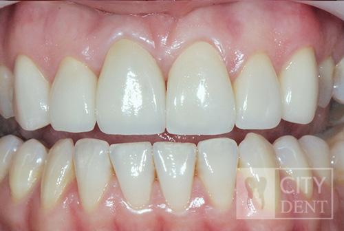 Korony i licówki pełnoceramiczne – wymiana nieestetycznej korony metalowo-ceramicznej, poprawa estetyki uśmiechu