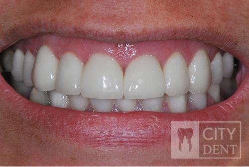leczenie zachowawcze zębów stan po leczeniu
