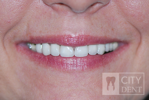 stan po leczeniu, nowy uśmiech pacjentki.