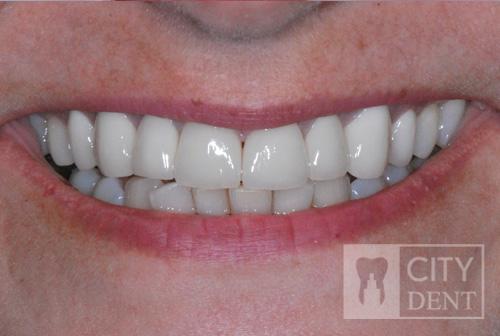 Stan po leczeniu zachowawczym zębów