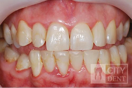 Leczenie zachowawcze zębów stan przed leczeniem