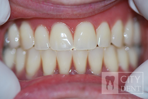 Leczenie bezzębia szczęki dolnej przy pomocy 4 implantów i protezy typu overdenture,