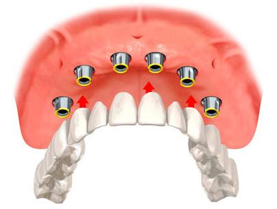 most porcelanowy na sześciu implantach