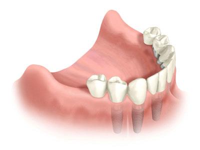 pojedyncze korony na implantach zębowów