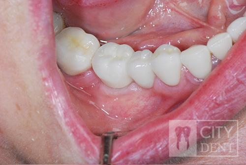 stan uzębienia po wykonaniu leczenia implantologicznego