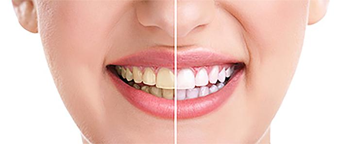 wybielanie zębów Konin
